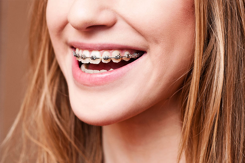 Orthodontics in Carlsbad