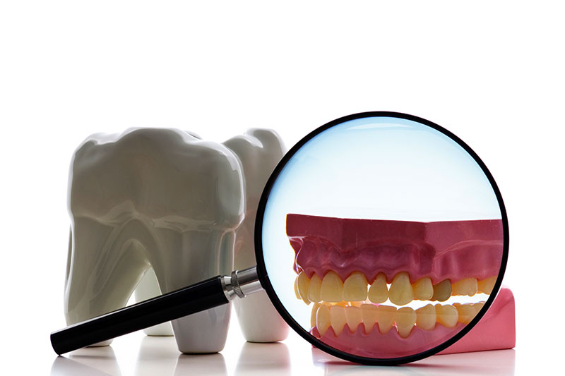 Root Canal in Carlsbad